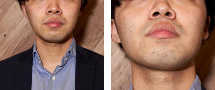 髭 対策 青