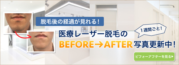 脱毛BEFORE AFTER