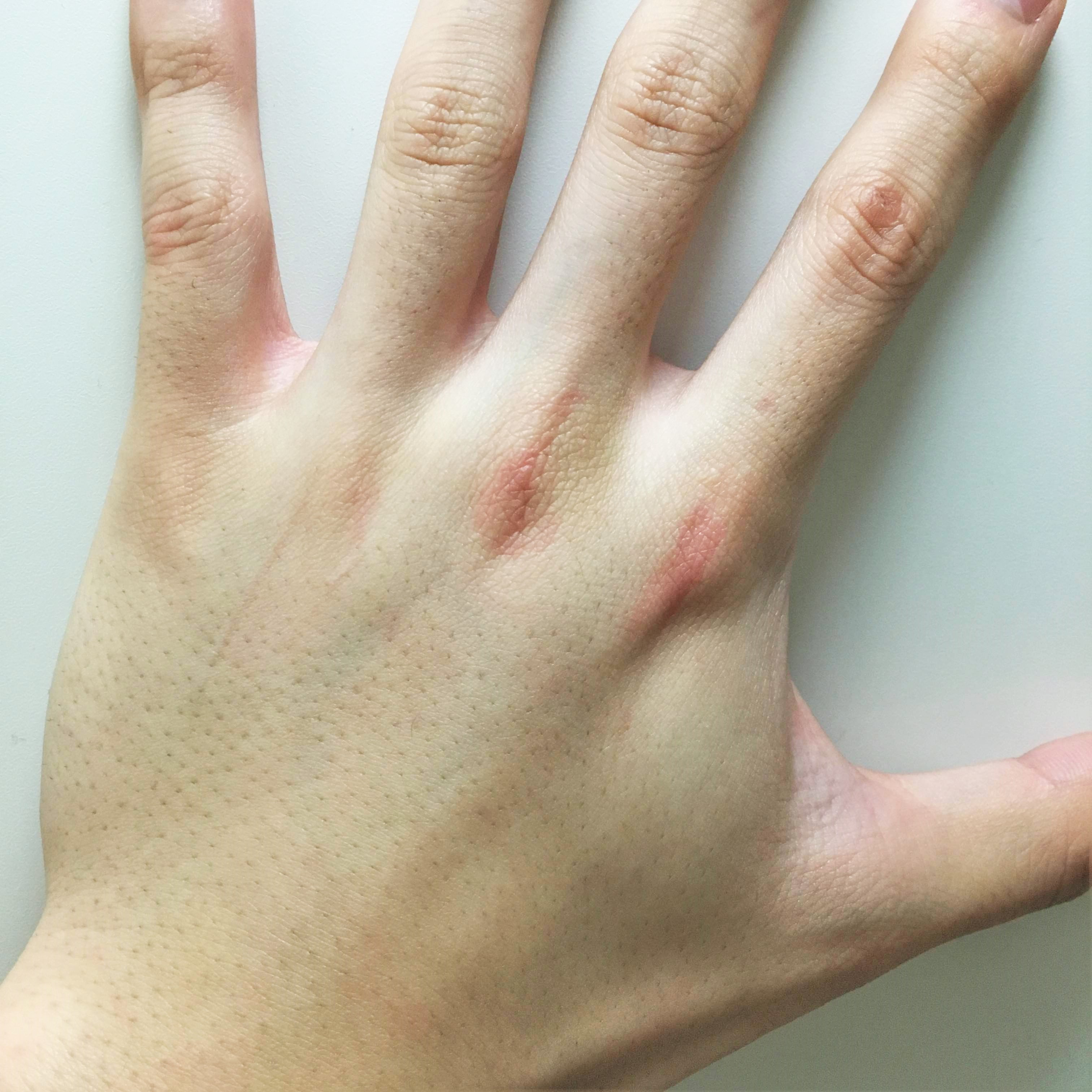 村上純一さん肛門周り・男性器・手背手指1回目