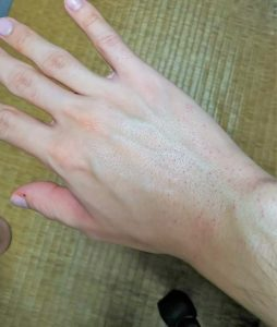 宮崎友啓さん下半身・ビキニライン2回目