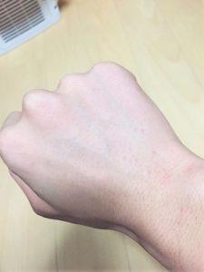 AYさんほほ・アゴ下・手背手指